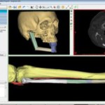 PROPLAN CMF - Surgery Planning Software by Materialise 1