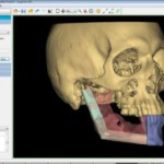 PROPLAN CMF - Surgery Planning Software by Materialise 3
