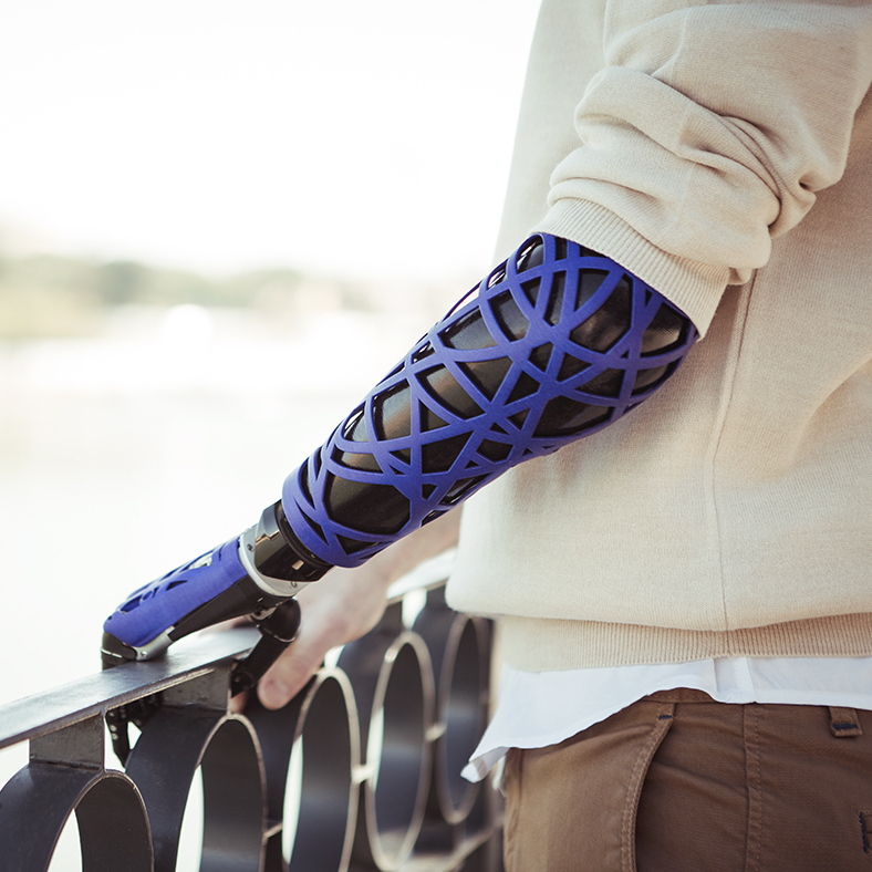 UNYQ Launches New Collection Of 3D Printed Prosthetic