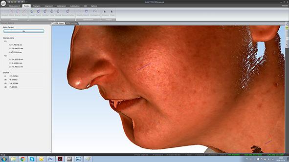 SMARTTECH_scan3Dmed_scan_result-1